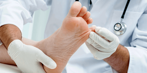 5 SYMPTOMS OF A DIABETIC FOOT + 9 TIPS FOR A TREATMENT
