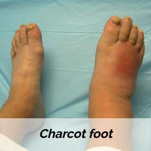 Diabetic charcot foot