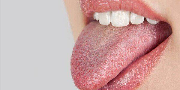 Dry Mouth From Diabetes Type 2_ 5 Tips To Reverse & Cure It